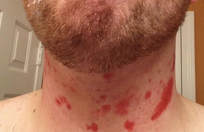 How To Prevent Razor Burns After Shaving Beards Skin Care